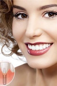 Доступная имплантация зубов