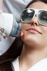 Фракционный фототермолиз для омоложения кожи