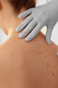 Рак шкіри є найпоширенішим захворюванням
