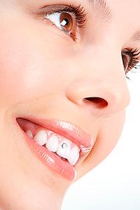 Скайсы - новомодное украшение зубов