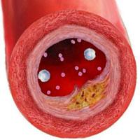 «Дело о холестерине»: естественный «бандаж» для артерий
