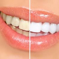 Отбеливание зубов: что важно помнить