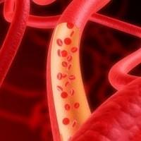 2 інгредієнти для зниження рівня цукру в крові