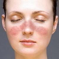 Какая должна быть доза витамина С, чтобы не было аллергии