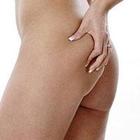 Можно ли сбросить вес при помощи белья для похудения