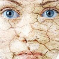 Каким бывает дерматит и как его избежать