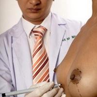 Увеличение груди методом хирургического вмешательства