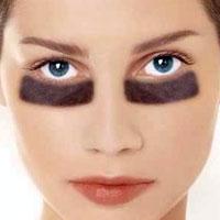 8 простих способів позбавлення від темних кругів під очима