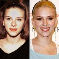 Как менялись знаменитости после славы. Фото до и после