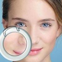 Як прибрати білі точки (міліуми) під очима