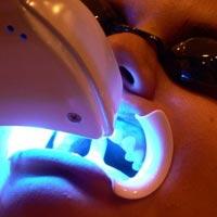 Отбеливание зубов не всегда полезно коже и глазам