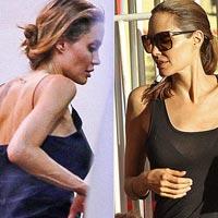 Анджелина Джоли снова пойдет на операцию убирать вены
