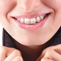 Брекеты – модная тенденция в борьбе с неровностью зубов