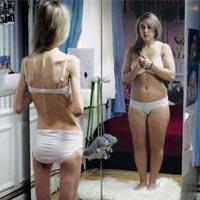 Исследование показало, что социальные сети могут провоцировать анорексию