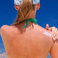 7 важливих кроків, якщо ти вже обгоріла на сонці