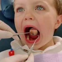 Стоматологи объяснили рост детского кариеса