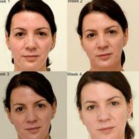 Як 3 літри води в день протягом місяця перетворюють обличчя