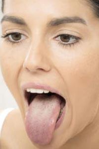 Внешний вид языка расскажет о состоянии вашего здоровья