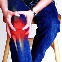 6 способов не допустить развития артрита и подагры