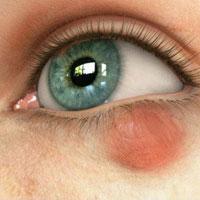 Лечение халязиона (узелков) народными средствами