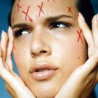 Народные рецепты лечения угревой сыпи