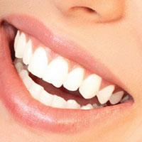 Домашние средства отбеливания зубов
