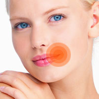 Народные методы лечения губной простуды