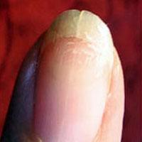 Домашнее лечение ломких ногтей