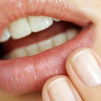Домашние методы лечение герпеса на губах