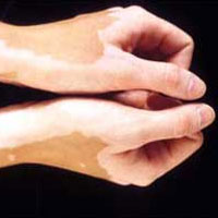 Витилиго: лечение белых пятен народными средствами