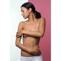 Мастопатия - зеркало женского здоровья. Уменьшить риски