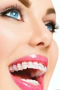 Виправлення прикусу в сучасній стоматології